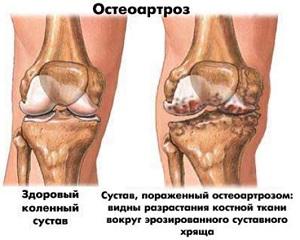 остеоартроз-коленного-сустава