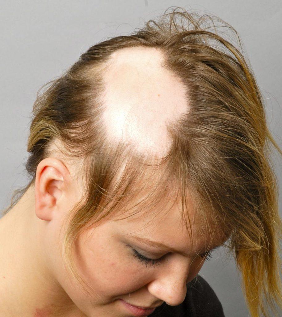Ochagovaya-alopetsiya-prichinyi