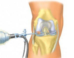 artroskopiya