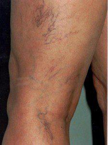 varicose-veins